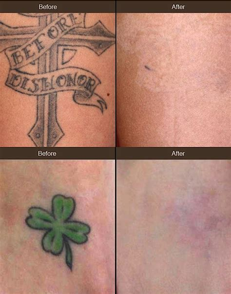 tattoo removal colors removal with new laser upgrade comes to beverly