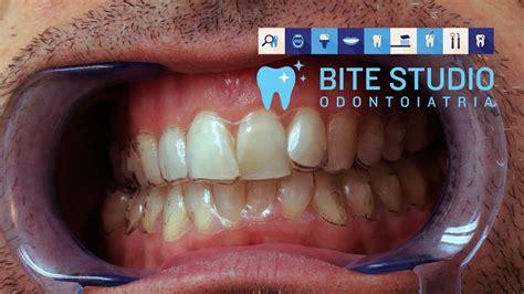 apparecchio mobile trasparente apparecchio ai denti roma sud ostia casal palocco e acilia