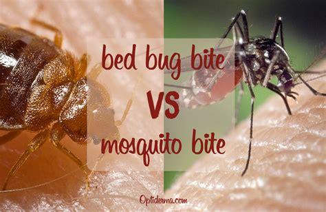 Mosquito Bites Vs Bed Bug Bites Vs Flea Bites