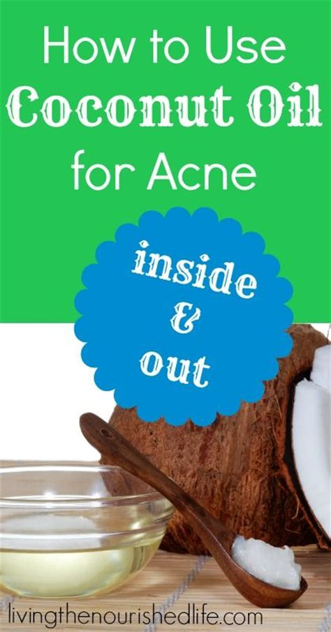 Coconut Detox Pimples by How To Use Coconut For Acne Acne Remedies Coconut