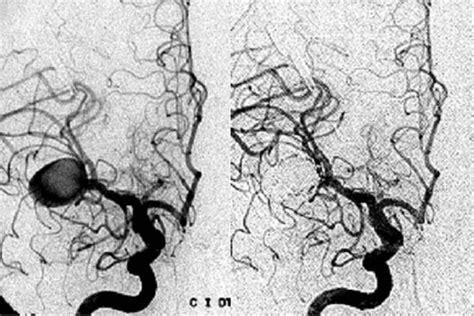 angiografia cerebral angiografia cerebral con presencia de aneurisma sacular