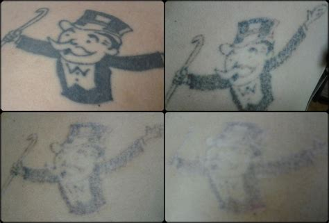 vanish tattoo removal 17 best images about vanish laser removal