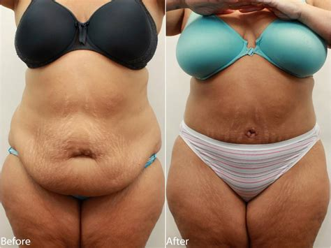 free tummy tuck after c section how to get rid of hanging skin on stomach dr darm