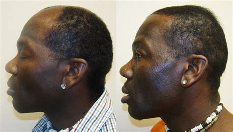 in south africa hair transplant angel african americans hair transplant testimonials