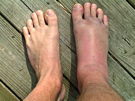sprained ankle ankle sprain achilles podiatry