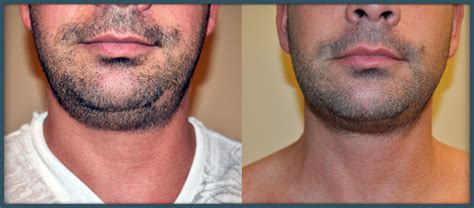 double chin tuck sew submentoplasty or neck liposuction san francisco ca