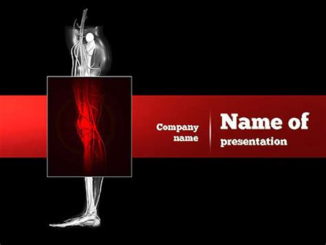 powerpoint templates knee human knee powerpoint template backgrounds 11000