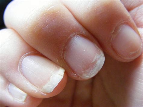 Nail Problems by 5 Common Nail Problems And How To Fix Them