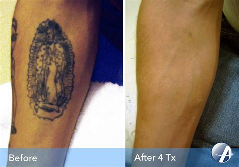 100 tattoo removal dallas tx new way gone laser