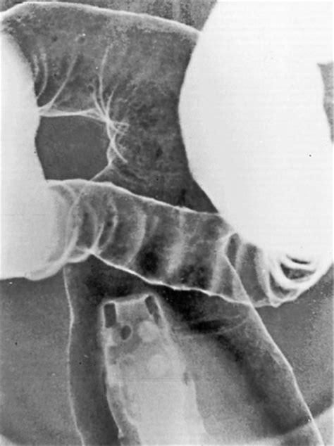 haustral pattern definition colon radiology key