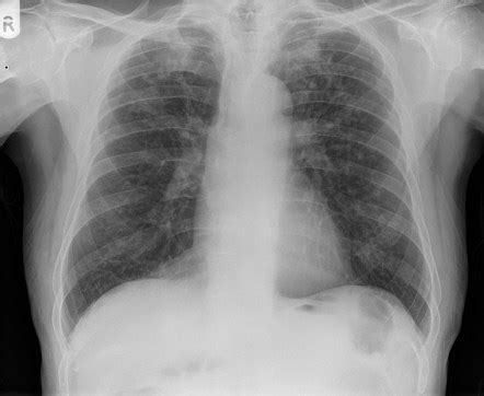 imaging in silicosis and coal worker pneumoconiosis silicosis image radiopaedia org