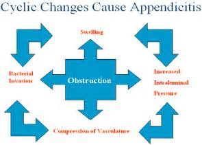 Appendicitis symptoms symptoms of appendicitis