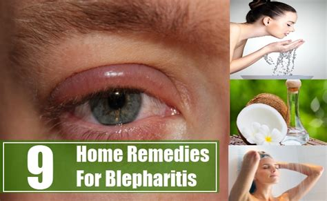 9 home remedies for blepharitis treatments and