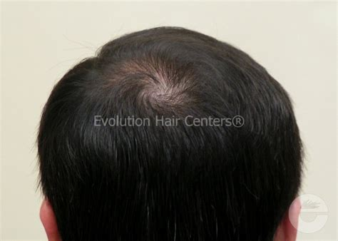 how to achieve bump at crown of hair for hairstyles male crown hair growth photos