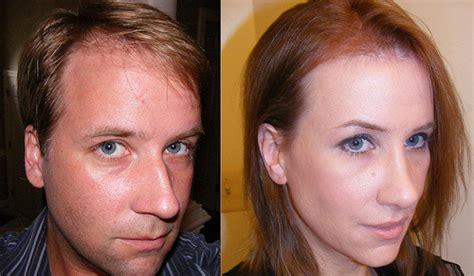 mtf ffs facial feminization surgery before and after facial feminization surgery flickr photo sharing