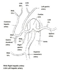 Essay On Pulmonary Circulation by Vascular Interventional Radiology Essay Exles