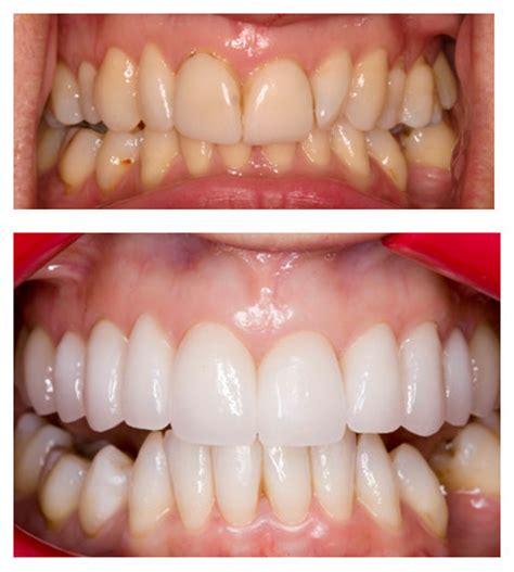 veneers pymble medical dental centre doctors