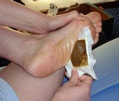 Asian Foot Detox by Japanese Detox Foot Patches