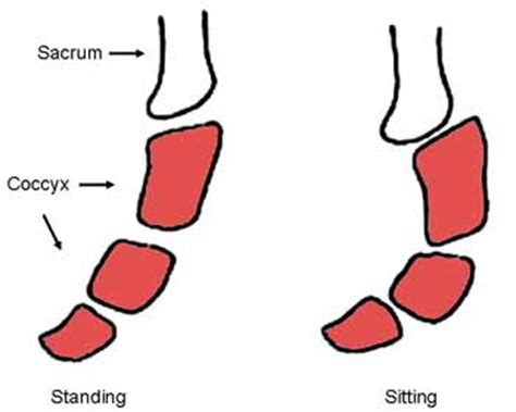 dolori al coccige da seduto coccige instabile o dislocato