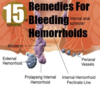 treatment for hemorrhoids cure for hemorrhoids