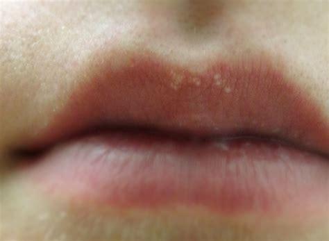 spot on treatment white spots on treatment