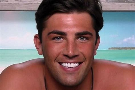 love island jack teeth    cheap uk pearly whites