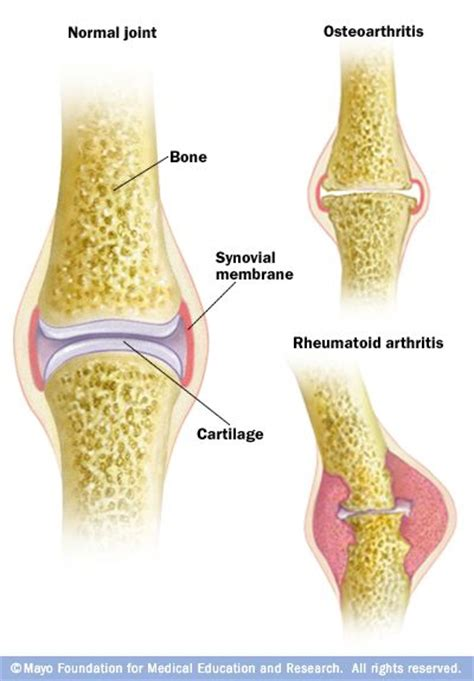 rottweiler arthritis symptoms 25 best ideas about synovial joint on shoulder strain edm and