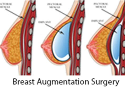 subfascial breast augmentation breast augmentation surgery in india