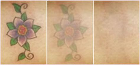 precision laser tattoo removal precision laser spa ottawa luxury hair
