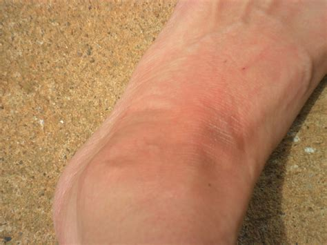 dry scaly ankles dry scaly ankles doctor vignjevic stucco keratoses