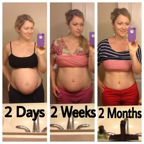 pregnant 9 weeks after c section natalie hodson showing how her stomach has changed after