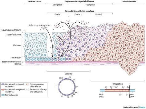 portio uterina oncologia catania il cancro della cervice uterina prima