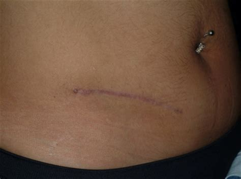 c section scar revision cost scar revision of appendectomy scar photo from douglas j