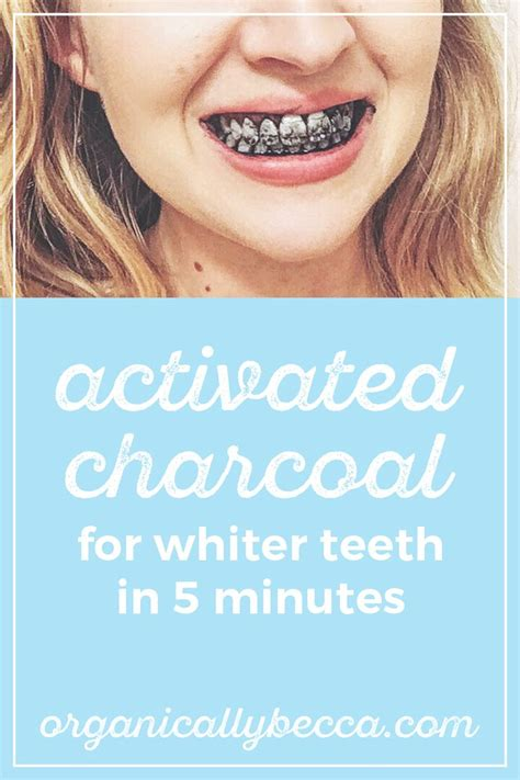 5 Tips For Whiter Teeth by 1000 Ideas About Stained Teeth On White Teeth