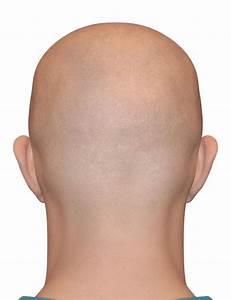 Выпадают волосы от гипоксии
