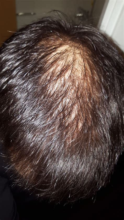 balding hair crowns thinning crown www pixshark com images galleries with