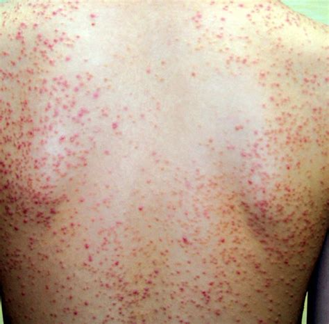Folliculitis Images eosinophilic folliculitis pictures symptoms diagnosis