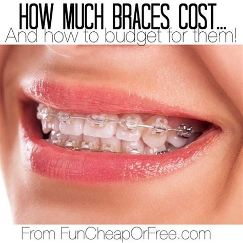 comfort dental braces cost how much braces cost or invisalign and how to budget