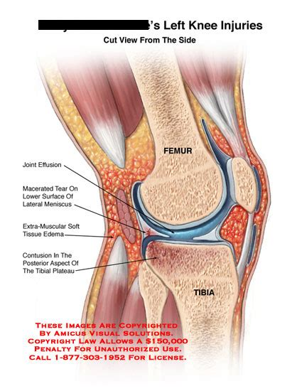 knee pain after c section amicus illustration of amicus injury knee sagittal joint