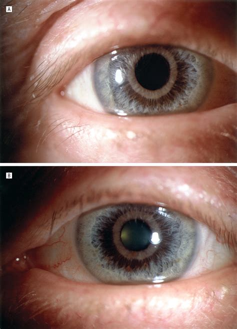 williams eye color age related iris stromal atrophy congenital defects