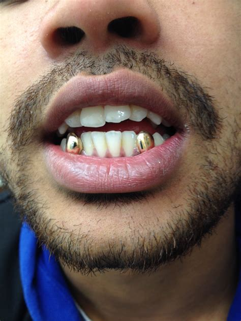with gold teeth bottom gold teeth pictures to pin on pinsdaddy