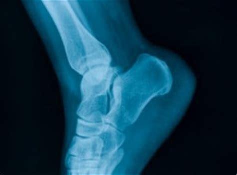 dolore al tallone parte interna frattura calcagno il portale sulla salute