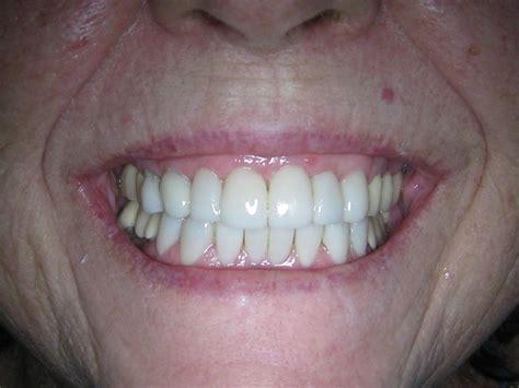 dental makeover  quezon city philippines