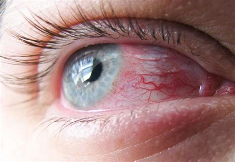 eye infection the fungal keratitis may cause