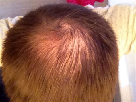best haircuts for hir loss on crown is my crown too thin to transplant with photo new