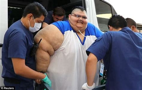 fattest person in the world world s fattest mans undergoes gastric bypass daily mail