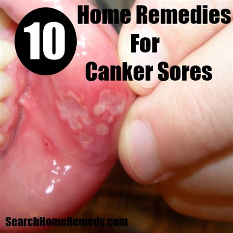 Home Remedy For Canker Sore by Cdc Herpes Statistics Herpes Advicer