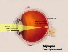 Blind Synonyms Near Sightedness Wikipedia