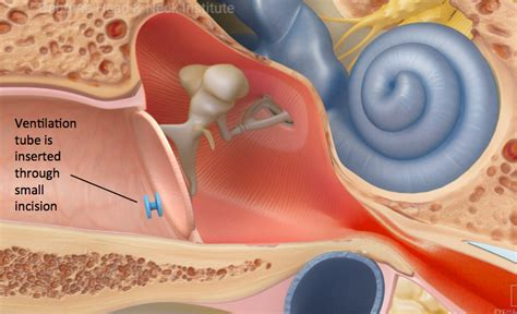 ear infection medicine ear infections treatment los angeles ca