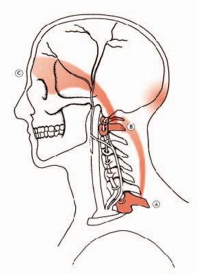mal di testa da tre giorni cefalea emicrania mal di testa sinusite atlante ernia